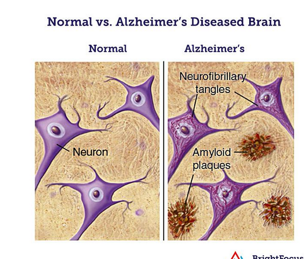 Amyloid plaques.PNG